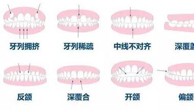 牙齿矫正 年龄并不是限制因素